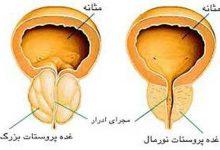 Photo of شرح مختصری درباره پروستات