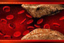 Photo of در مورد چربی خون چه می دانید ؟