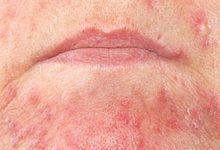 Photo of بیماری شایع پوستی دراماتیت سبورئیک