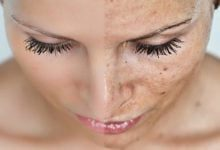 Photo of چگونه لکه های پوستی را از بین ببریم