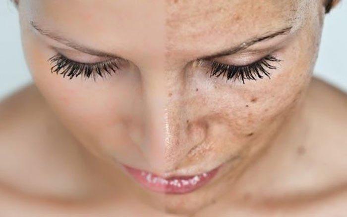 چگونه لکه های پوستی را از بین ببریم