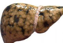 Photo of توصیه های طب سنتی برای درمان کبد چرب