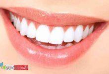 Photo of با این ترکیب دندان هایتان را برق بیاندازید