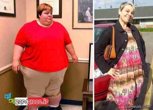 افرادی که با چاقی مبارزه کرده اند