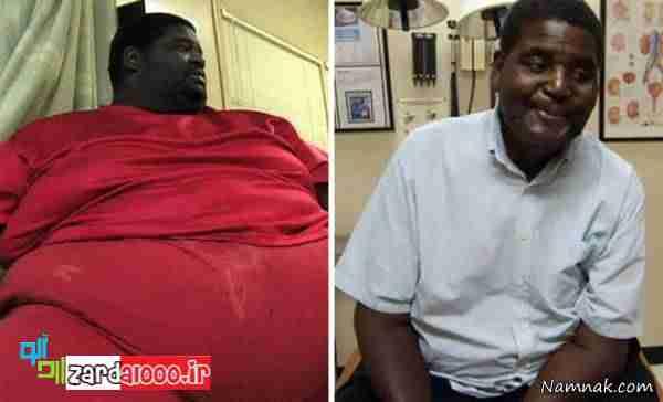 کاهش وزن عجیب و غیر قابل باور افراد چاق