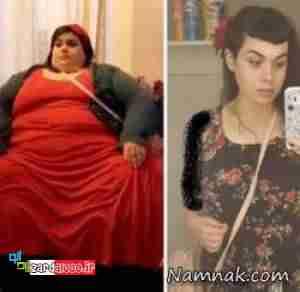 عکسهای جالب و باورنکردنی قبل و بعد از کاهش وزن