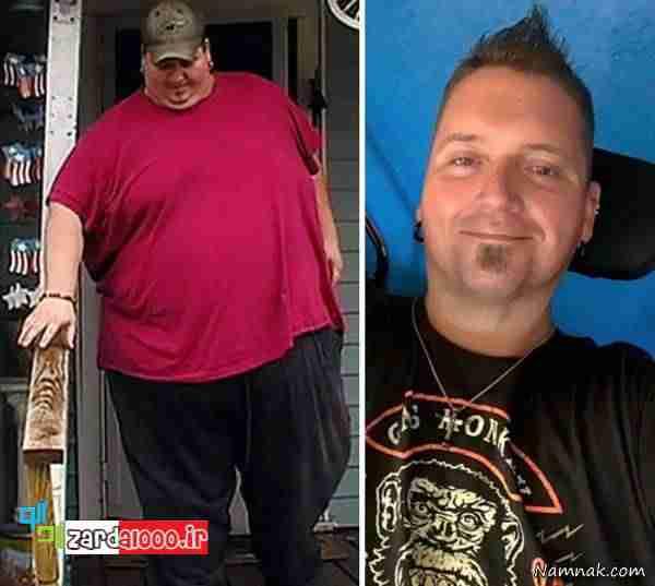 افراد چاق با کاهش وزن عجیب و غیر قابل باور