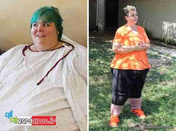 کاهش وزن باورنکردنی دختر جوان