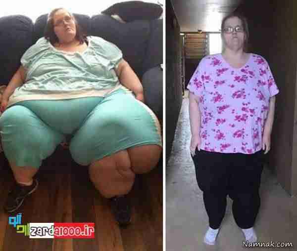 کاهش وزن باورنکردنی در افراد چاق